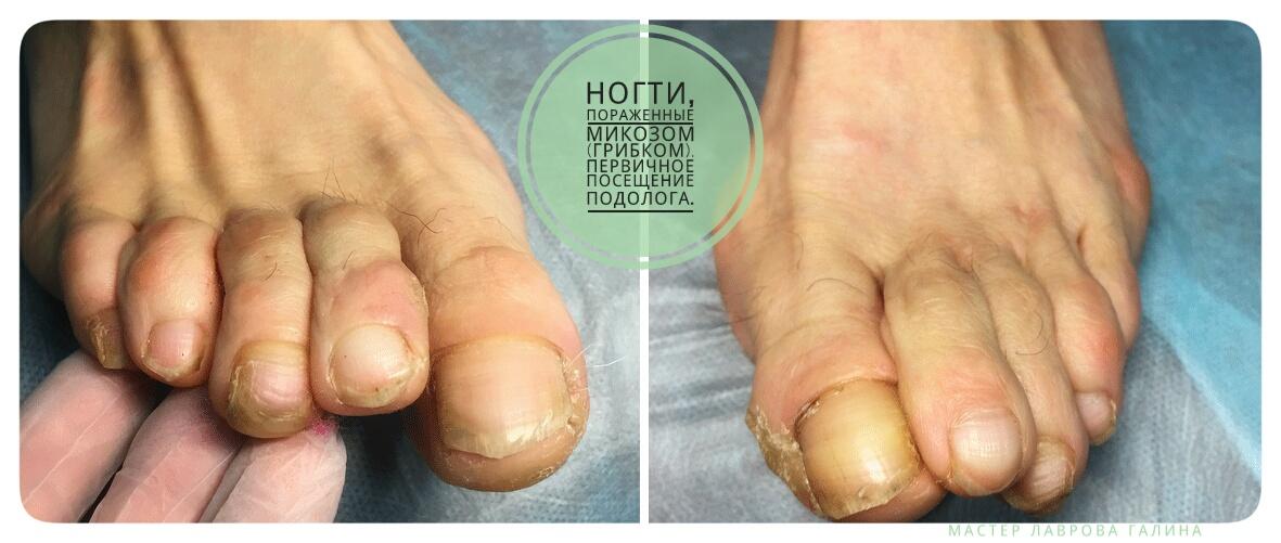 Лечение грибка ногтей микоза Волгоград