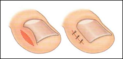 Народные средства от грибка ногтей при беременности