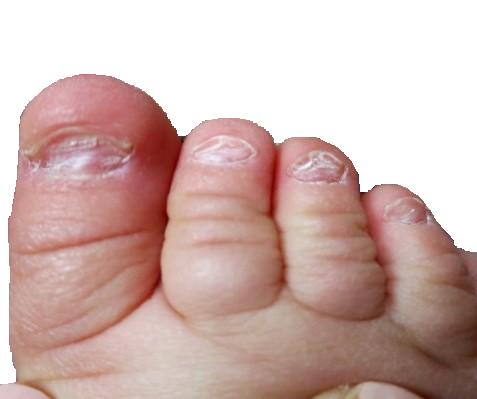 Кривые ногти на руках причина и лечение