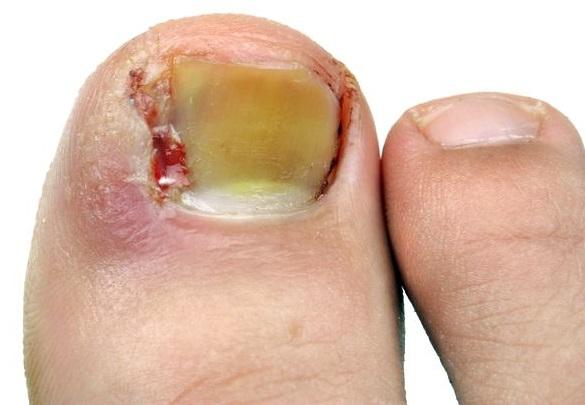 Как можно подцепить грибок на ногах